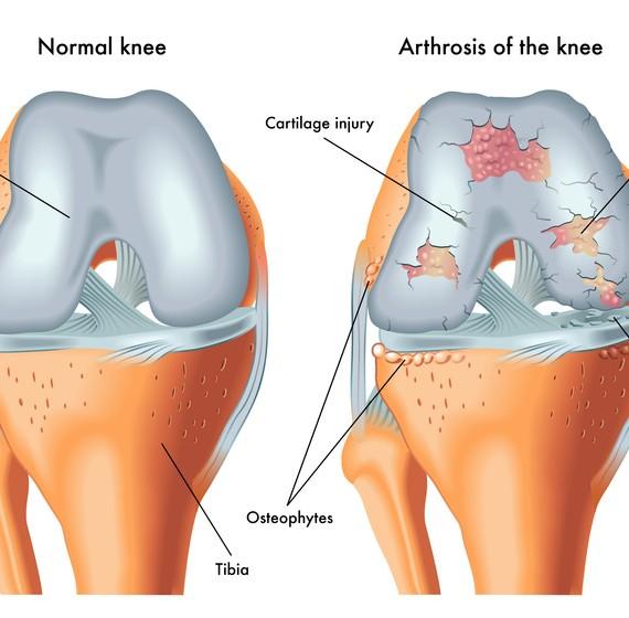 Tratamiento para Atrosis y lesiones articulares